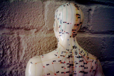 Vancouver Acupuncture at Broadway Wellness